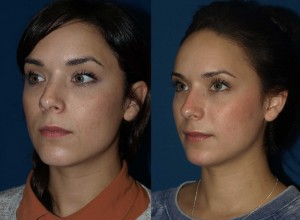 rhinoplasty-5-before-and-after-oblique