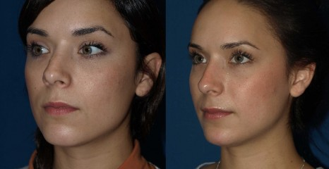 Rhinoplasy Before and After