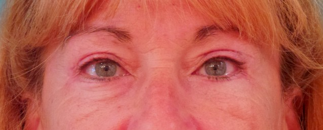 Lower eyes Before