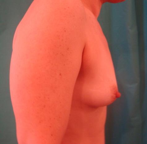 Breast Before