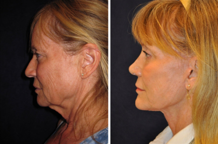Perfect Age For Facelift