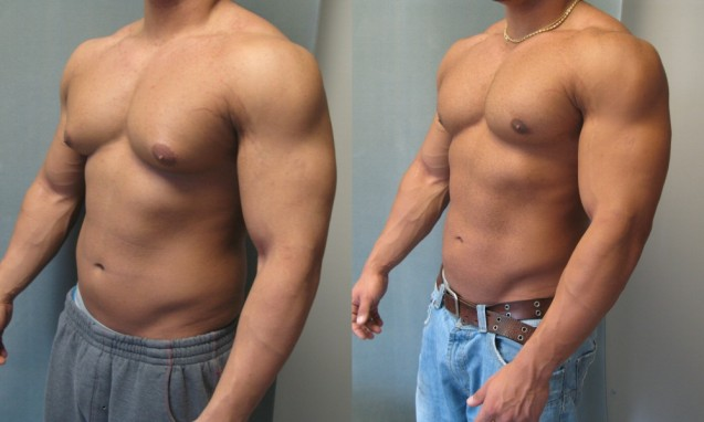 Good Results With Surgery For Gynecomastia In Bodybuilders