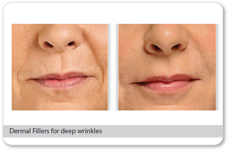 Are Fillers The Right Choice For You?