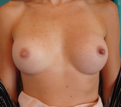 Breast After