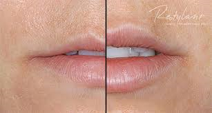 New Product Promises a Better Way to Get Full Lips